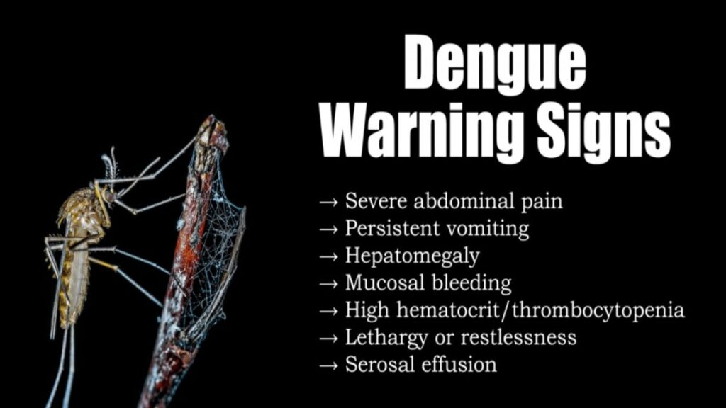Dietary Tips for Dengue fever patients