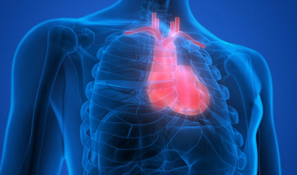 Ischemic heart  disease - lifestyle and diet changes
