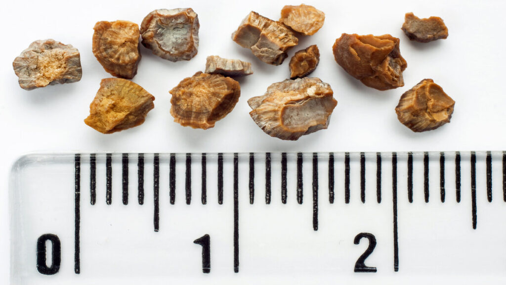 Kidney Stone Diet and Dietary Management