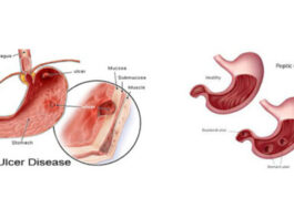Peptic Ulcer What Foods To Eat